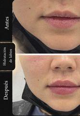 Aumento de labios - Imebelle