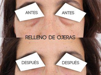 Rellenos faciales - 794831