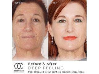 Antes y después Peeling
