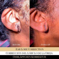 Lobuloplastia - Ocean Clinic Madrid