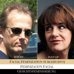 Feminizacion Facial - Ocean Clinic Madrid