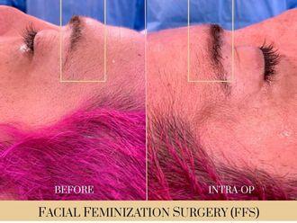 Cirugía íntima-740308