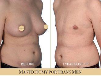 Cirugía íntima-740313