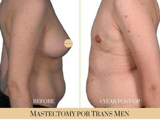 Cirugía íntima-740315