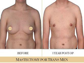 Cirugía íntima-740319