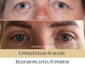 Blefaroplastia-740320