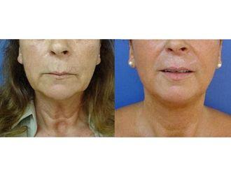 Rejuvenecimiento facial-495618