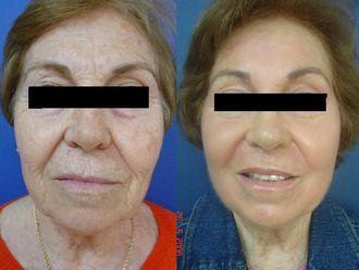 Rejuvenecimiento facial-495619
