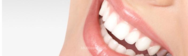 Remodelado de labios
