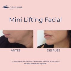 Lifting facial - Clínica Luz