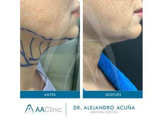 Cirugía estética-701544
