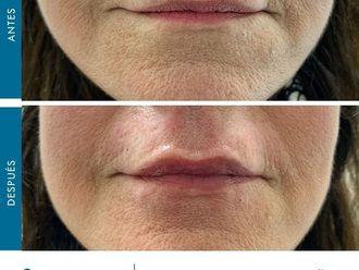 Aumento labios-775876