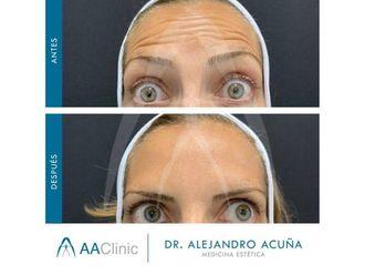 Medicina estética-775878