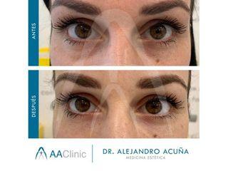 Eliminación de ojeras - AA CLINIC