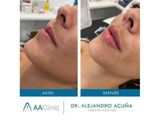 Aumento de labios - AA CLINIC