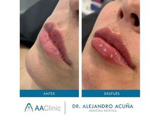 Aumento labios-775892