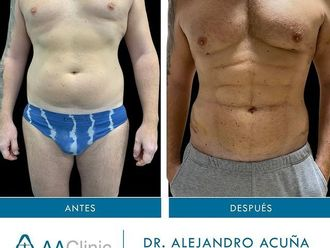 Marcación abdominal-775894