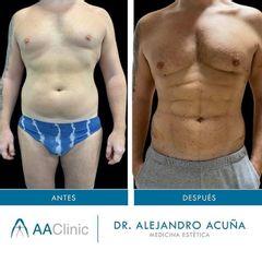 Marcación abdominal - AA CLINIC