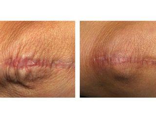 Antes y después Eliminación cicatrices