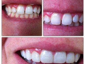 Ortodoncia - 619227