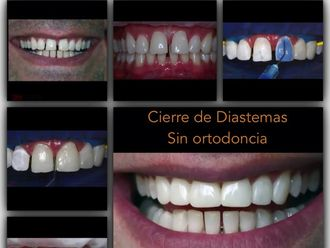 Estética dental - 619228