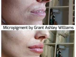 Antes y después Micropigmentación Profesional Grant Ashley Williams