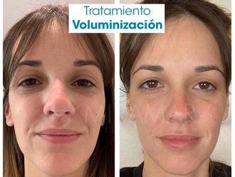 Rellenos faciales-636039