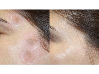 Tratamiento antimanchas-741967