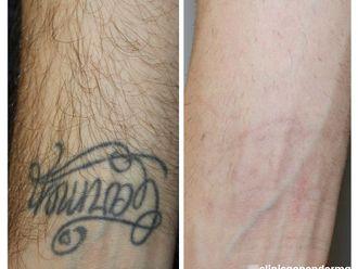 Eliminación de tatuajes - 790011