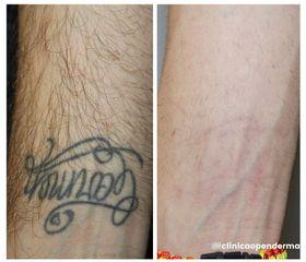 Eliminación de tatuajes - Clínica Openderma