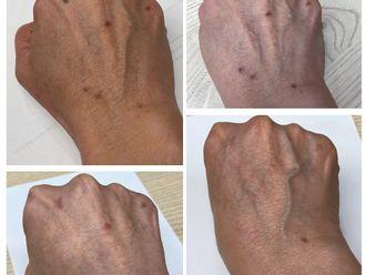Tratamiento antimanchas - 790013