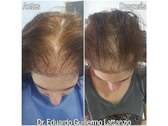 Tratamiento capilar - 649301