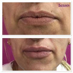 Aumento de labios - Clínica Senses