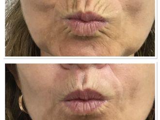 Rellenos faciales - 797903