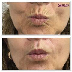Rellenos faciales - Clínica Senses