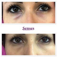 Eliminación de ojeras - Clínica Senses