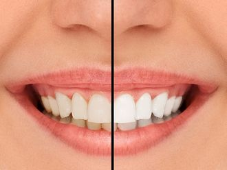 Blanqueamiento dental - 512844