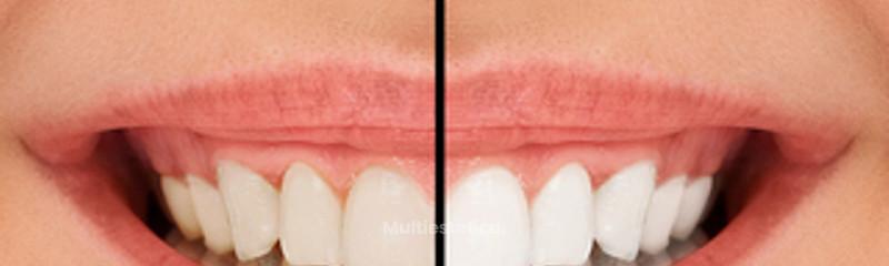 Blanqueamiento dental Extreme CQM