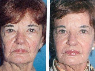 Rejuvenecimiento facial-294416