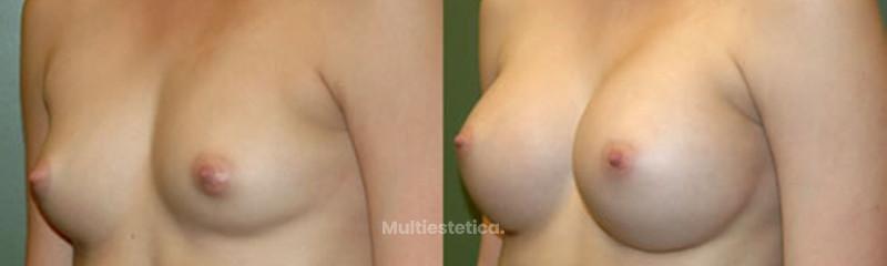 Aumento de pecho. Protesis mamaria submuscular. dr beltran Beautybybeltran