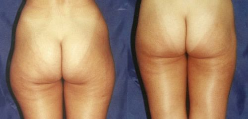 Liposucción glúteos