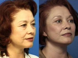 Rejuvenecimiento facial-329800