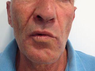 Hilos Tensores y Botox
