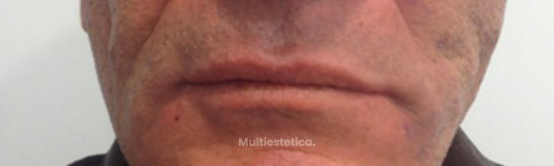 Hilos Tensores y Botox. Beltran beautybybeltran
