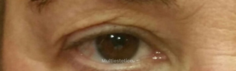 Blefaroplastia Laser. Dr. Beltrán beautybybeltran