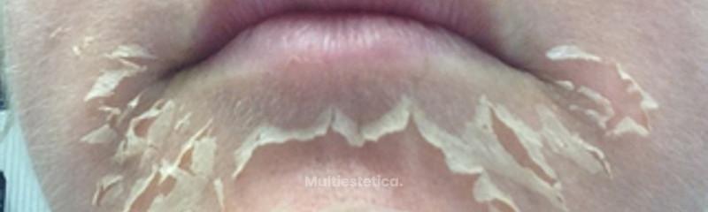 Peeling Quimico Rejuvenecimiento Facial.  dr beltran beautybybeltran