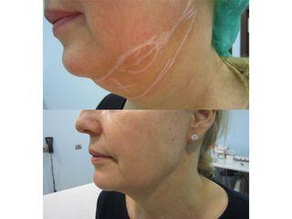 Liposucción de papada - Doctor Beltrán