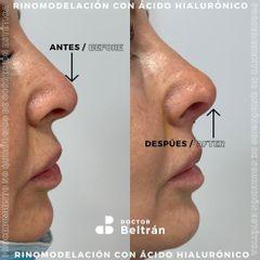 Rinomodelación - Doctor Beltrán