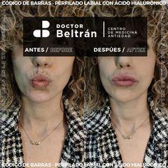 Rellenos faciales - Doctor Beltrán