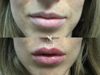 Aumento labios-623892